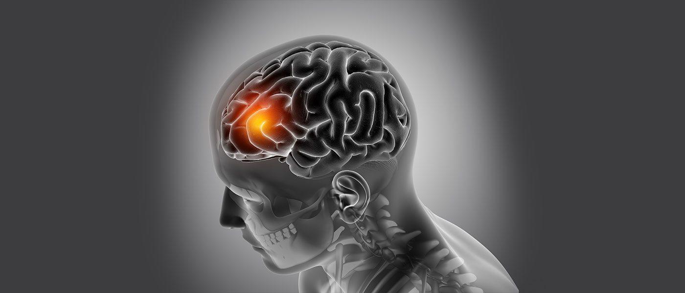 stroke-header
